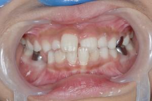 大人の歯が、1本だけの反対咬合(受け口)簡単なケース。