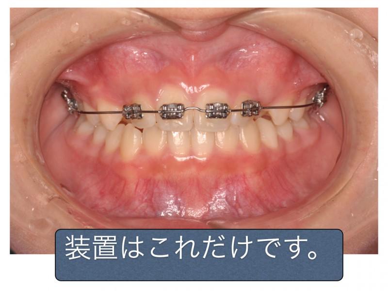 子供 歯 列 矯正 費用