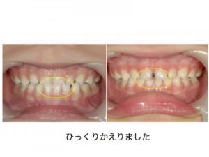 乳歯の、受け口です。装置を使える年齢まで2年待ちました。