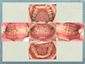 拡大しても抜歯矯正を選択2