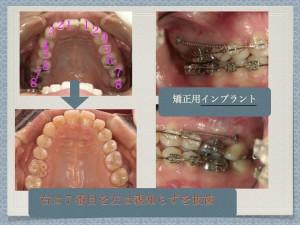 私はすでに、歯が抜かれてるんですけど、まだ抜くんですか?