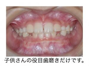 乳歯が残っている時期の受け口ケース