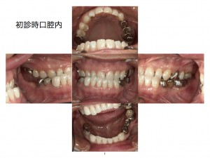 矯正前に顎の位置を変えることもあります。