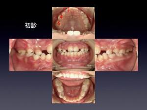 1期治療の期間は歯の生え変わりに左右されます。