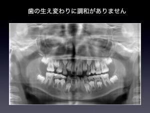 hidakaka .002