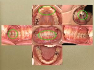 神経が抜かれてる歯の予後は保証できません。