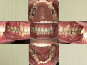 前歯の凸凹が主訴でした。口元を少し引っ込める。