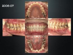 上下の口元を変える。顔を変えるには抜歯矯正です。