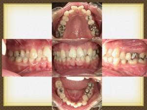 下の前歯が2本抜かれていました。