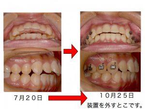 出っ歯を、早く、患者さんにわかりやすく、抜歯せずに改善できたら。