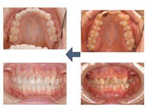 見た目を改善するのに、差し歯のやりかえが必要な事もあります。