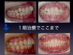 1期治療で、ここまで直します。大人になると抜歯矯正になると判断しました。