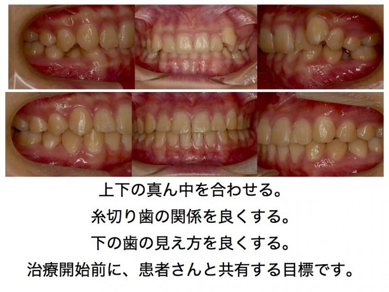 歯並びを良くしましょう。どこをどのくらい?